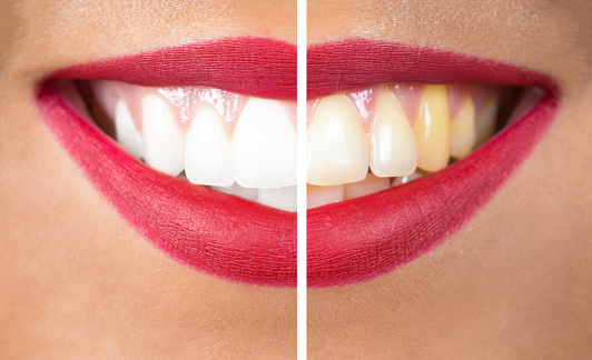 Whitening your teeth can be a way to enhance the appearance of your smile.