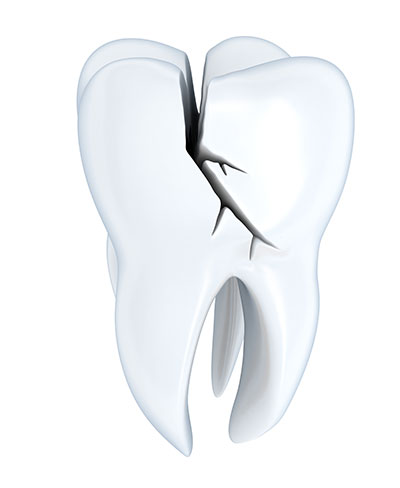 What is the Danger of Having a Cracked Tooth if it Doesn't Hurt?